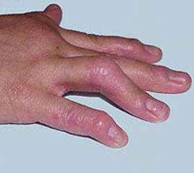 手部银霄病是怎样的