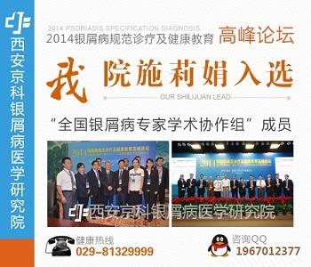 郑州牛皮癣治疗权威医院