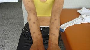 怎样确诊皮肤病牛皮癣